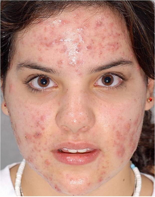 hard pimples causes treatment and more healthline - HD 1394×1500